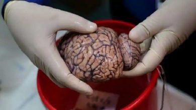 Photo of COVID ไม่เพียง แต่ส่งผลกระทบต่อปอด แต่ยังส่งผลต่อสมองด้วย?  อ่านบทสรุปที่น่าตกใจของการศึกษา |  COVID ไม่เพียงส่งผลกระทบต่อปอด แต่ยังส่งผลกระทบต่อสมองด้วย?