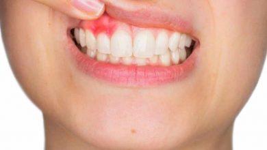 Photo of ฝีในช่องปากเจ็บปวดเกี่ยวกับอาการวิธีการรักษา |  เรียนรู้อาการฝีในฟันรับการรักษาแบบนี้และดูแล