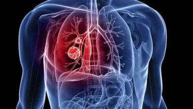 Photo of 4 สาเหตุที่ทำให้เกิดมะเร็งปอดในผู้ไม่สูบบุหรี่ |  ผู้ที่ไม่สูบบุหรี่ก็เป็นมะเร็งปอดได้เช่นกันสาเหตุสำคัญ 4 ประการนี้