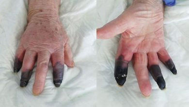 Photo of โคโรนา: นิ้วของผู้หญิงเปลี่ยนเป็นสีดำด้วนโดยแพทย์ในอิตาลี |  โคโรนาอันตรายอีกรูปแบบหนึ่งเผยหญิงวัย 86 ปีเป็นแผลเน่าต้องตัดนิ้วสามนิ้ว