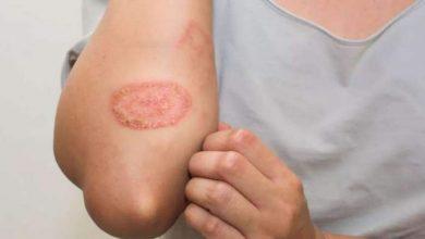 Photo of 5 ตัวกระตุ้นเหล่านี้อาจลุกลามเป็นโรคผิวหนังกลากได้วิธีป้องกัน |  กลาก: 5 สาเหตุนี้อาจทำให้เกิดโรคผิวหนังอักเสบได้รู้วิธีป้องกัน