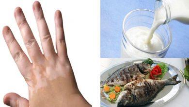 Photo of การกินนมและปลาร่วมกันทำให้เกิดโรคด่างขาวผู้เชี่ยวชาญพูดอย่างไรเกี่ยวกับโรคผิวหนังนี้ |  การกินปลาและดื่มนมทำให้เกิดฝ้าขาวหรือไม่?  เรียนรู้สาเหตุของโรคผิวหนังและวิธีหลีกเลี่ยง