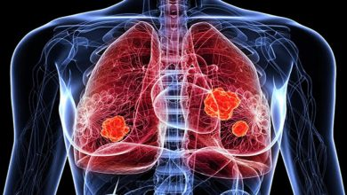 Photo of อย่าละเลยอาการไอต่อเนื่องอาจเป็นสัญญาณของมะเร็งปอด |  อย่าเพิกเฉยต่ออาการไอถาวรอาจเป็นไปได้ที่จะระบุโรคด้วยอาการเหล่านี้