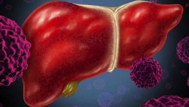 Photo of โรคอ้วนและเบาหวานปัจจัยเสี่ยงหลักของโรคตับไขมันที่ไม่มีแอลกอฮอล์ |  คนอ้วนและผู้ป่วยเบาหวานส่วนใหญ่เสี่ยงต่อการเป็นโรคไขมันพอกตับ