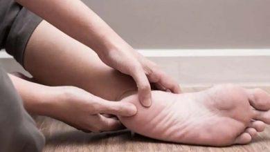 Photo of ระวังถ้าคุณเห็นสัญญาณเหล่านี้ที่เท้าของคุณโรคเหล่านี้อาจเกิดขึ้นได้ mpsn |  หากคุณเห็นสัญญาณเหล่านี้ที่เท้าของคุณให้ระวังโรคเหล่านี้อาจเกิดขึ้นได้