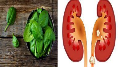 Photo of อาหารที่ควรกินและหลีกเลี่ยงหากคุณมีนิ่วในไต |  หากคุณมีปัญหาเรื่องนิ่วในไตอย่าลืมกินสิ่งเหล่านี้โดยไม่ได้ตั้งใจ