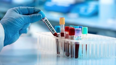Photo of การศึกษาใหม่ระบุว่าการตรวจเลือดสามารถบ่งชี้เบื้องต้นของโควิด -19 ที่รุนแรง |  การตรวจเลือดเท่านั้นที่จะทราบได้ในระยะเริ่มแรกว่าใครมีความเสี่ยงต่อโรค Kovid-19 ขั้นรุนแรงและใครที่ไม่ใช่