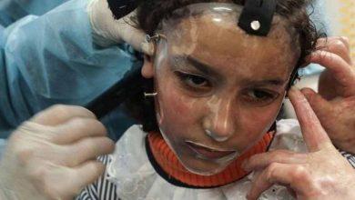 Photo of เด็กหญิงแปดขวบสวมหน้ากากพลาสติก a3d เพื่อการรักษาที่ดีที่สุดในฉนวนกาซาแผลไหม้รุนแรงเปลี่ยนหน้า  ใบหน้าของเด็กหญิงวัยแปดขวบไหม้เกรียมเนื่องจากถูกไฟไหม้ในฉนวนกาซาชีวิตกลายเป็นเรื่องปกติ
