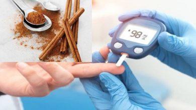 Photo of อบเชยเครื่องเทศครัวสำหรับเบาหวานและควบคุมน้ำตาลรู้วิธีใช้ |  อบเชยเป็นยาครอบจักรวาลควบคุมระดับน้ำตาลในเลือดเบาหวานวิธีใช้