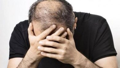 Photo of alopecia areata โรคที่ทำให้ผมร่วงแบบคาดเดาไม่ได้ยังไม่มีวิธีรักษา |  ผมร่วง Areata: ผมร่วงเร็วเนื่องจากโรคนี้ไม่มีทางรักษาได้