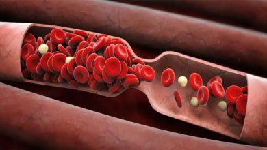 Photo of สัญญาณและอาการของก้อนเลือดที่คุณไม่ควรละเลย |  สัญญาณลิ่มเลือด: จากการเปลี่ยนแปลงของสีผิวไปจนถึงการอักเสบอย่าเพิกเฉยต่อสัญญาณของก้อนเลือดเหล่านี้