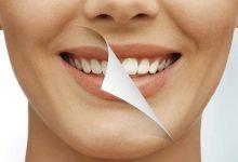 Photo of เคล็ดลับลองวิธีแก้ไขบ้านเหล่านี้เพื่อผลลัพธ์การฟอกสีฟันจะทำให้คุณประหลาดใจ uppm |  มีปัญหากับฟันเหลืองและฟันสกปรกลองใช้เคล็ดลับที่ไม่ตรงกันของคุณย่าคุณยายจะทำให้คุณประหลาดใจ