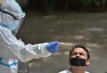 Photo of ข่าวสำคัญจะรู้ได้อย่างไรว่าคนก่อนหน้านี้ติดเชื้อโคโรนาไวรัสหรือไม่แอนติบอดีต่อโควิด ngmp |  ข่าวสำคัญ: จะระบุได้อย่างไรว่าคุณมีโคโรนาหรือไม่?  เพียงแค่ค้นหา