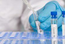 Photo of โคโรนาไวรัสแอนติบอดีทดสอบว่ามันคืออะไรและทำไมมันถึงมีประโยชน์ rt pcr แอนติเจนอย่างรวดเร็ว  Coronavirus Antibody Test: การทดสอบแอนติบอดีคืออะไร?  รู้ว่าทำไมคุณไม่ควรทำโดยไม่จำเป็น