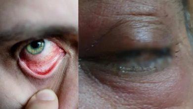 Photo of รู้รายละเอียดทั้งหมดเกี่ยวกับ mucormycosis หรือเชื้อราดำรวมถึงอาการและวิธีการอยู่รอด brmp |  เชื้อราดำเป็นอันตรายต่อคนเหล่านี้มากขึ้นสายตาหายไปเรียนรู้อาการและวิธีที่จะหลบหนี