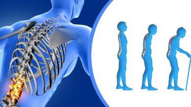Photo of ต้องมีเคล็ดลับในการเสริมสร้างกระดูกของร่างกาย janiye haddiyon ko majbot kese banayen brmp |  ข่าวสุขภาพ กระดูกจะอ่อนเร็ว รีบเปลี่ยนนิสัย
