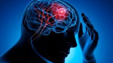 Photo of วันเนื้องอกสมองโลก ปี 2564 เนื้องอกในสมองคืออะไร รู้ไว้ที่นี่ อาการของเนื้องอกในสมอง brmp |  วันเนื้องอกสมองโลก 2021 ระวังความจำเสื่อม ตาพร่า เสี่ยงเป็นเนื้องอกในสมอง