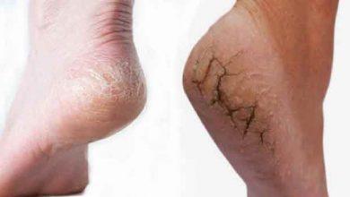 Photo of รู้ไว้ที่นี่ Cracked Dry Heel Remedies janiye fati yediyon ko kese thik kare brmp |  วิธีแก้ปัญหาส้นเท้าแห้งแตก: การเยียวยาที่บ้านเหล่านี้จะกำจัดปัญหาส้นเท้าแตก คลิกเพื่อทราบ