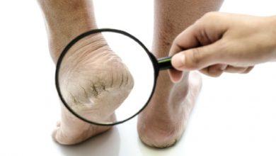 Photo of การเยียวยาที่บ้านสำหรับส้นเท้าแตก รู้ที่นี่ ส้นเท้าแตก ดูแล janiye fati yediyon ko kese thik kare brmp |  การดูแลส้นเท้าแตก: การเยียวยาที่บ้านเหล่านี้จะทำให้ส้นเท้าแตกนุ่มขึ้น เพียงแค่ใช้มันแบบนี้