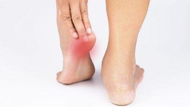 Photo of การรักษาอายุรเวชสำหรับอาการปวดส้นเท้าสาเหตุของอาการปวดส้นเท้า janiye edi me dard ho to kya karein samp |  การรักษาอายุรเวทสำหรับอาการปวดส้นเท้า: ใช้เพียงใบเดียวให้ประโยชน์