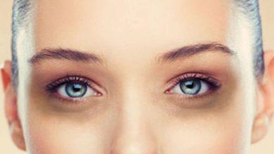 Photo of เคล็ดลับการดูแลผิวและใบหน้า วิธีกำจัดริ้วรอยบนใบหน้าและใต้ตาคล้ำ วิธีลดริ้วรอย brmp |  รอยคล้ำและริ้วรอยใต้ตาจะหายไป ลองวิธีนี้ดู