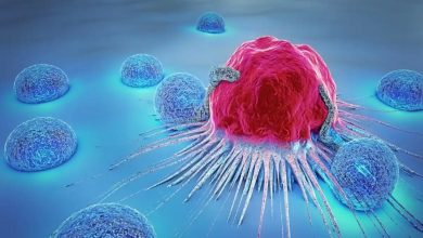 Photo of มะเร็งมี 5 ระยะ และในระยะนี้มะเร็งกลายเป็นตัวอย่างที่ควบคุมไม่ได้ |  ระยะของมะเร็ง: มะเร็งมี 5 ระยะ หลังจากระยะนี้โรคจะควบคุมไม่ได้