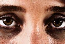 Photo of การเยียวยาที่บ้านเพื่อลบรอยคล้ำใต้ตา รู้ที่นี่ How To Remove Dark Circles brmp |  วิธีลบรอยคล้ำใต้ตา รอยคล้ำใต้ตาจะหายไปในไม่กี่วัน ใช้ของเหล่านี้เก็บไว้ในครัว