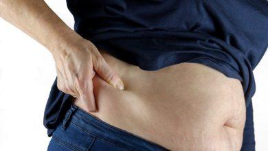Photo of โรคที่เกิดจากโรคอ้วน รู้ไว้ที่นี่ โรคอ้วนและ 5 วิธีหลีกเลี่ยง brmp |  โรคที่เกิดจากโรคอ้วน: โรคอ้วนทำให้คุณเป็นเหยื่อของโรคร้ายแรงเหล่านี้ได้