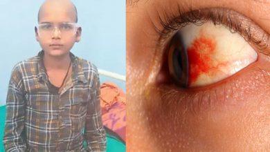 Photo of ผลกระทบของเบาหวานขึ้นจอตาในผู้ป่วยเบาหวาน  วันละ 40 โรตี ตาหยุดมอง ตรวจแล้วกลายเป็นโรคร้ายแรง รู้ว่าเบาหวานคืออะไร