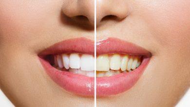 Photo of เคล็ดลับทำให้ฟันขาว วิธีขจัดคราบและความเหลืองของฟัน janiye daant saaf karne ka tarika samp |  เคล็ดลับฟันขาว : ทำสิ่งเหล่านี้ก่อนนอน ฟันจะขาวเหมือนเพชร