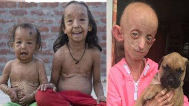 Photo of หายากโรคปุ่มเบนจามิน progeria ทำให้เกิดริ้วรอยอย่างรวดเร็วในเด็ก janiye ปุ่มเบนจามิน bimari ke lakshan samp |  โรคหายาก : โรคหายากเช่นนี้ที่เด็กอายุ 10 ขวบเริ่มปรากฏเมื่ออายุ 100 รู้อาการ