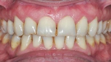 Photo of เคล็ดลับการดูแลฟัน วิธีแก้ไขบ้านที่ดีที่สุดเพื่อขจัดคราบและสีเหลืองเพื่อให้ฟันขาว เคล็ดลับการดูแลทันตกรรม: นี่เป็นวิธีที่ดีที่สุดในการทำความสะอาดฟัน ฟันจะเริ่มส่องแสงใน 5 นาที